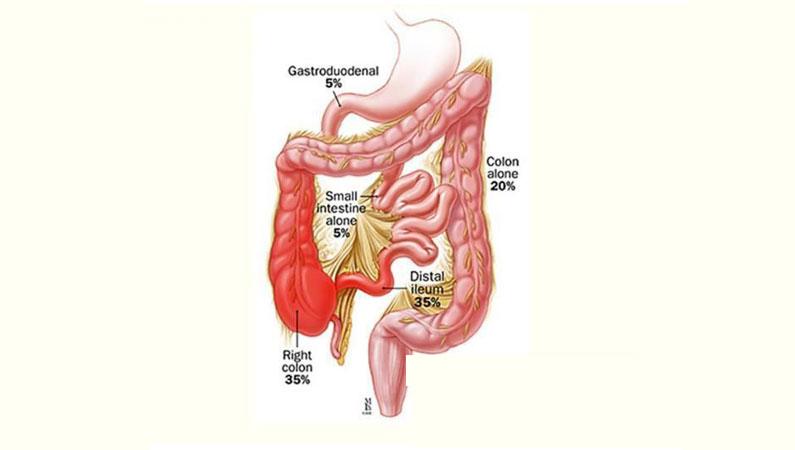 Carcinoid Tumours
