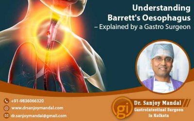 Understanding Barrett's Oesophagus – Explained by a Gastro Surgeon